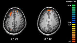 Mágneses rezonancia vizsgálattal az egész test feltérképezhető