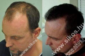 Hair transplant Hungary